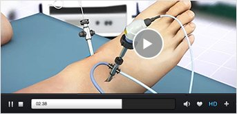 Patient Education Videos Mark Drakos