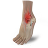 Sports Foot and Ankle Injuries