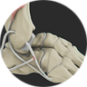 Tendon Reconstruction